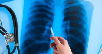 Первинна медична допомога: супровід та лікування пацієнтів з туберкульозом