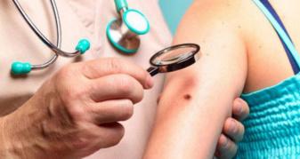 У Нововолинську безкоштовно обстежуватимуть на рак шкіри