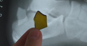 Турійські лікарі зі ступні пацієнта дістали великий уламок скла