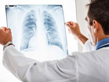 Щороку в Україні виявляють близько 13 тисяч нових випадків раку легень