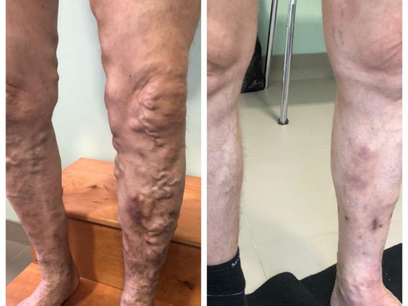 Ноги, вражені варикозом